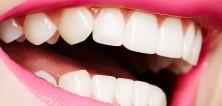 Stydíte se za své zuby? Pomohou vám zubní implantáty nebo fasety